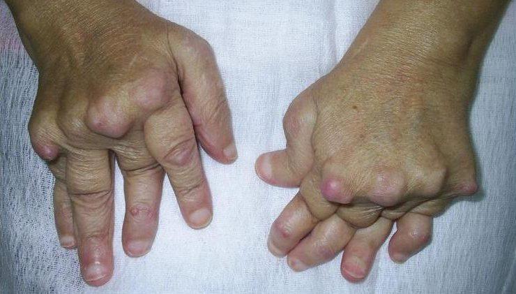 Воспаление суставов при полиартрите
