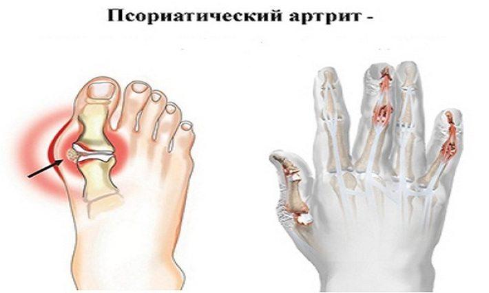 Проявление псориатического артрита