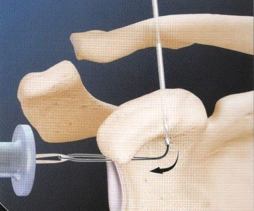 Артроскопия акромиально-ключичного сочленения