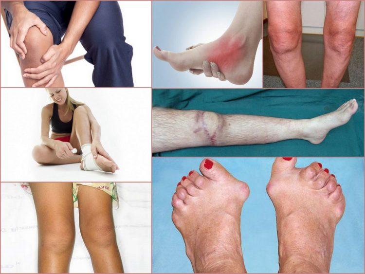 Артроз нижних конечностей - патология, встречающаяся довольно часто