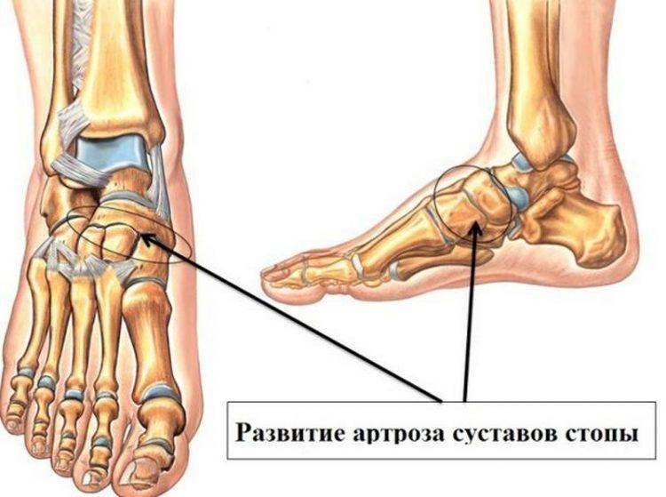 Артроз суставов стопы и как выглядит патология