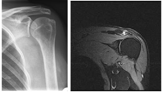 Рентгеновский и МРТ-снимок