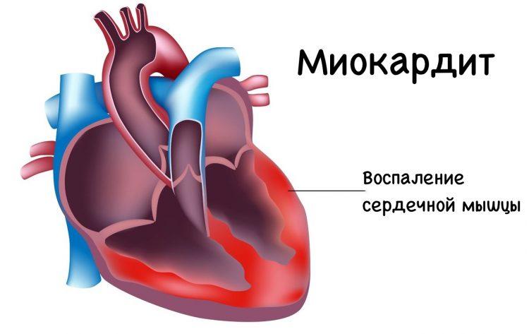 Воспаление сердечной мышцы при миокардите сердца