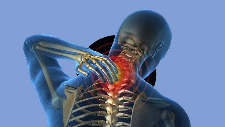 Остеохондроз шейного отдела - заболевание, которое чаще всего встречается у людей 30-50 лет