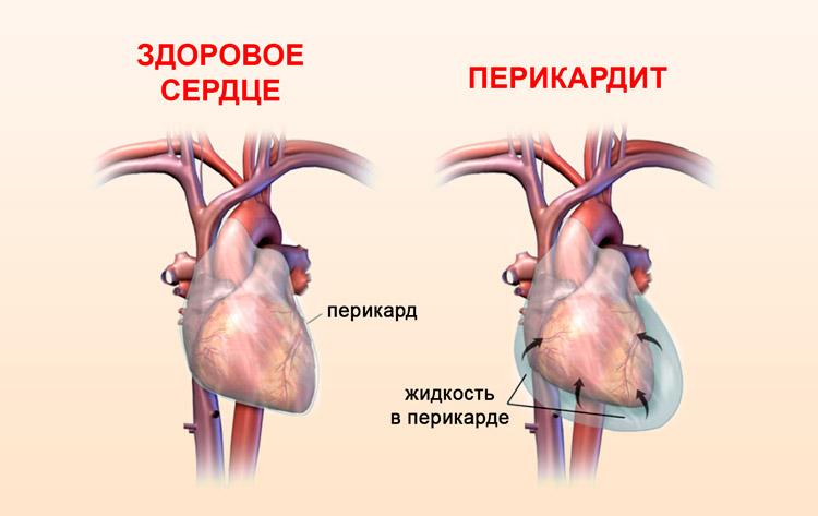 Воспаление оболочки сердца при перикардите