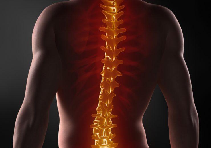 Полисегментарный остеохондроз может поражать сразу несколько участков позвоночника