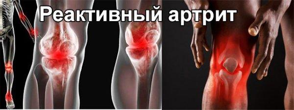 Реактивный артрит протекает в тяжелой форме
