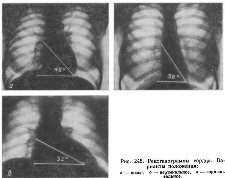 Рентгенография сердца поможет обнаружить патологию сердца или остеохондроз