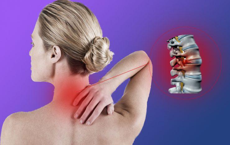 Остеохондроз - заболевание, протекающее в хронической форме