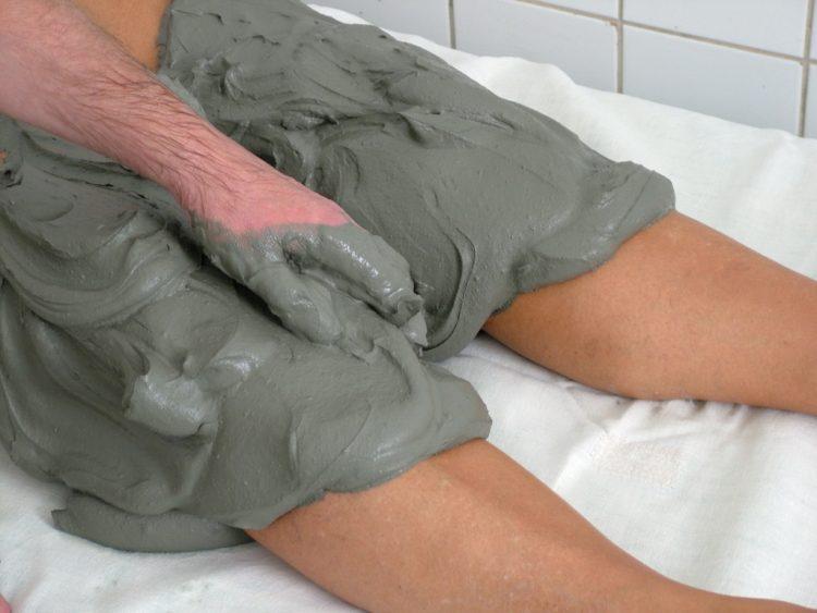 Нанесение глины на пораженный сустав