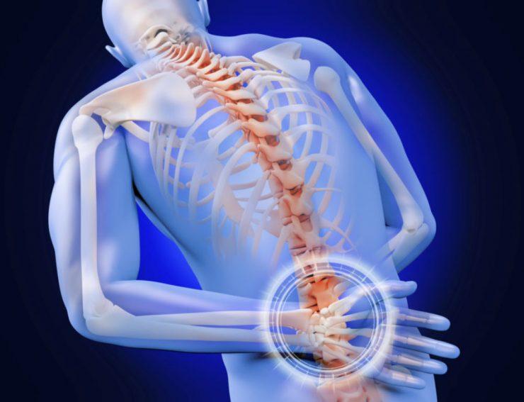 Серонегативный спондилоартрит - заболевания, похожи по симптоматике и течению