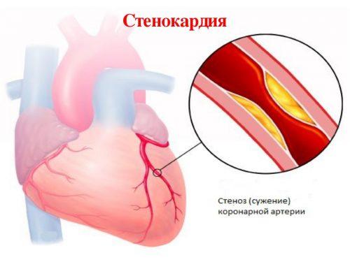 При стенокардии появляется боль, похожая на укол