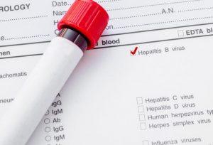 Ревматоидный артрит может вызывать развитие гепатита В или С