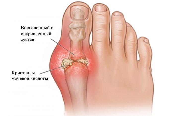 Артрит большого пальца - патология, которая встречается чаще всего