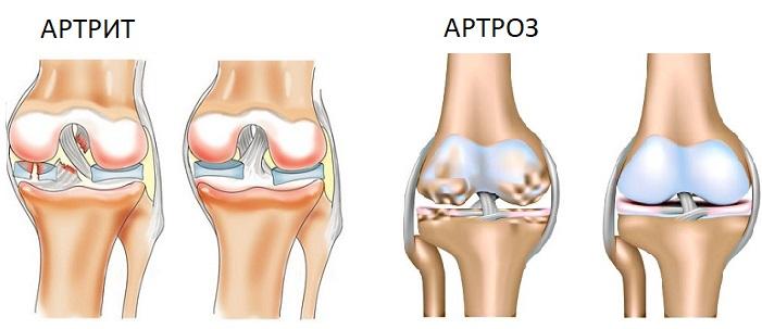 Артрит и артроз - патология, развивающаяся в суставах
