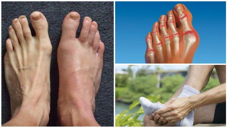 Артрит пальцев ног чаще всего встречается у людей среднего и пожилого возраста
