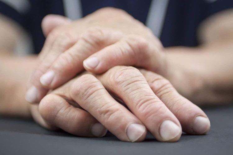 Серонегативный артрит имеет выраженную симптоматику