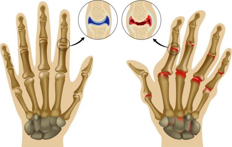 Артрит пальцев рук необходимо лечить комплексно