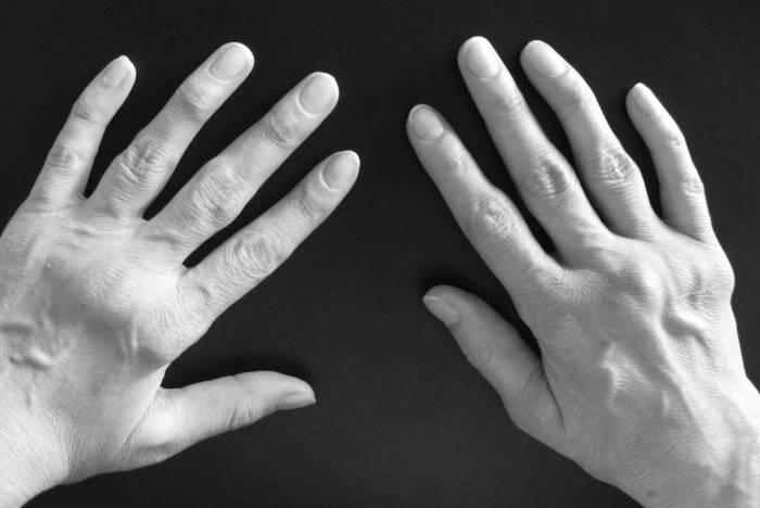 Серопозитивный артрит отличается легким течением