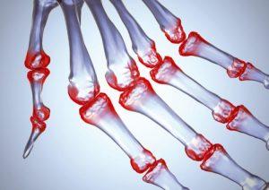 Артрит суставов может проявляться даже в молодом возрасте