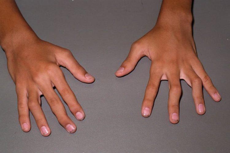 Юношеский артрит поражает детей младше 16 лет