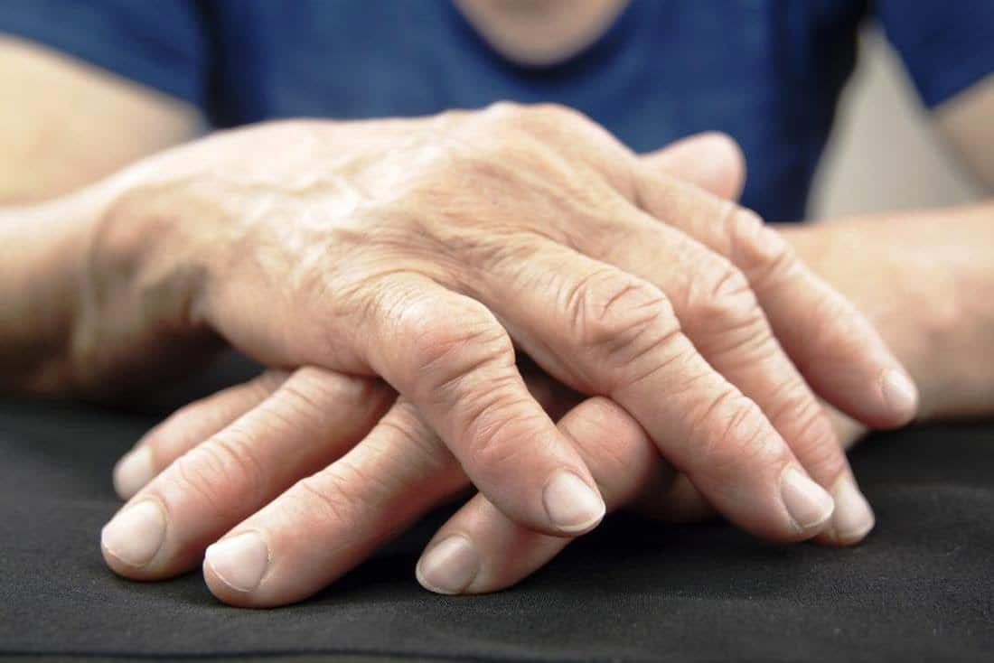 Артрит суставов - патология, которая может привести к инвалидности