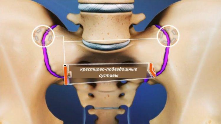 Артроз крестцово-подвздошных сочленений - опасное заболевание