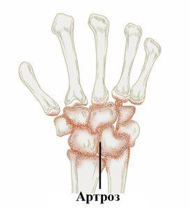 Артроз лучезапястного сустава - заболевание, развивающееся после травмирования