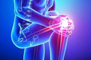 Патология чаще всего развивается на фоне травмирования суставов