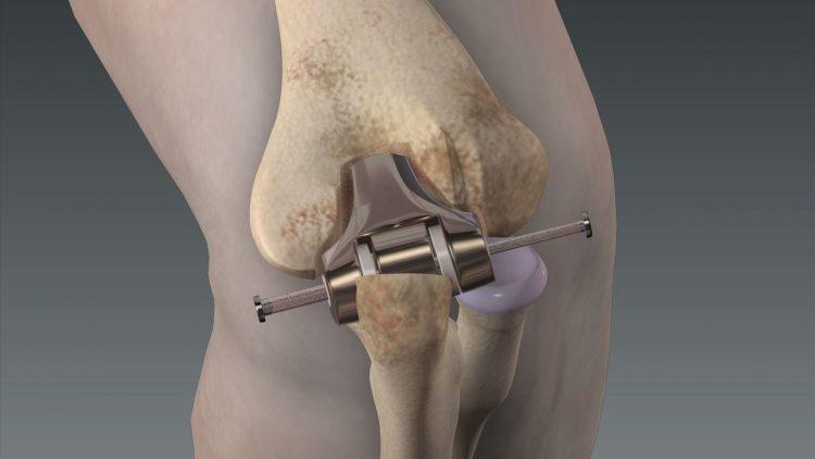 Установленный эндопротез в коленном суставе