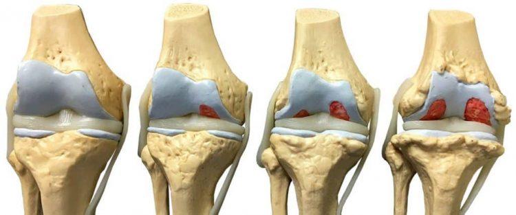 Стадии развития гонартроза сустава