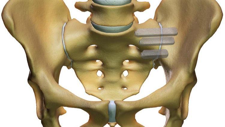 Хирургическое вмешательство проводится в случае неэффективного консервативного лечения