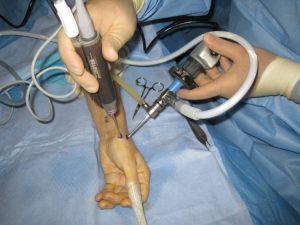 Хирургическое вмешательство проводят на последней стадии заболевания