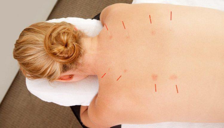 Иглорефлексотерапия при остеохондрозе обладает массой достоинств