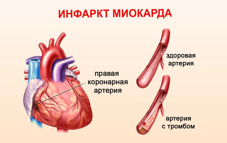 Инфаркт миокарда - сущность патологии