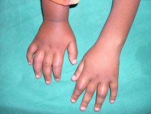 Малая подвижность суставов при инфекционно-аллергическом артрите
