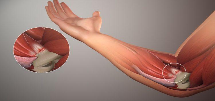 При локтевом остеоартрите наблюдается скованность при сгибании рук
