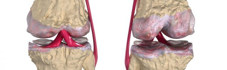 Рассекающий остеохондрит чреват осложнениями