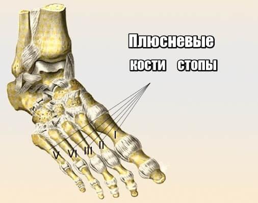 Остеоартрит плюсны может развиваться по нескольким причинам
