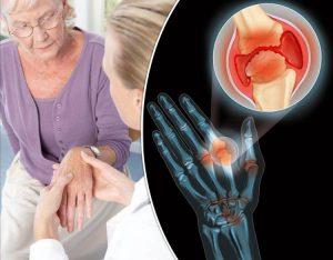 Утончение хрящей при остеоартрите