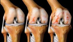 Заболевание суставов при остеоартрите