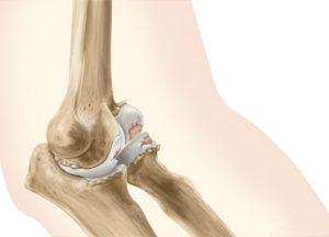 Остеоартроз локтевого сустава -заболевание, которое чаще всего встречается у людей после 55 лет