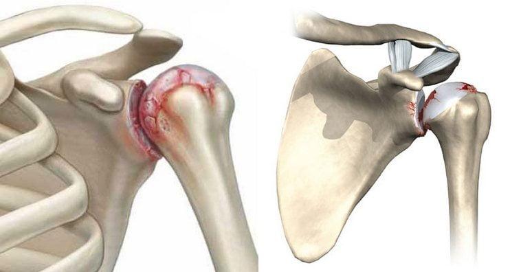 Остеоартроз плечевого сустава - опасная форма заболевания