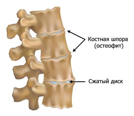 Как выглядит остеофит позвоночника
