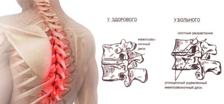 Остеохондроз грудного отдела позвоночника - сущность патологии