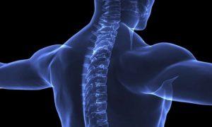 Остеохондроз шейного отдела - очень опасное заболевание