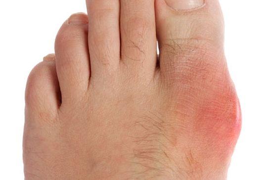 При подагрическом артрите поражается первый палец стопы