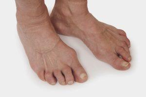 Полиартрит - заболевание, связанное с воспалением суставных тканей