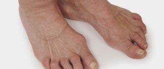 Полиартрит ног