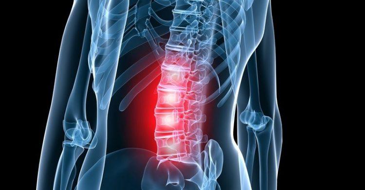 Пояснично-крестцовый корешковый остеохондроз характеризуется болями в пояснице, отдающими в ногу